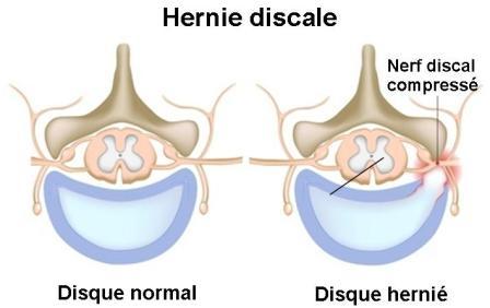 La technique de médecine pour le traitement de lépine dorsale