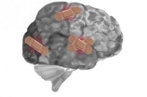 lésions au cerveau