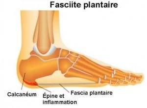 Clinique-chiropratique-Chambly-invertrac-traitement-fasciite-plantaire