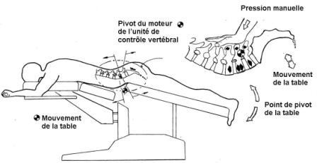 Clinique-chiropratique-Chambly-table-ajustement-Cox