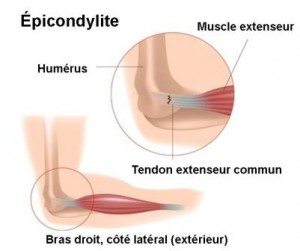 Clinique-chiropratique-Chambly-traitement-epicondylite