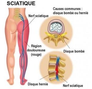 Clinique-chiropratique-Chambly-traitement-sciatique